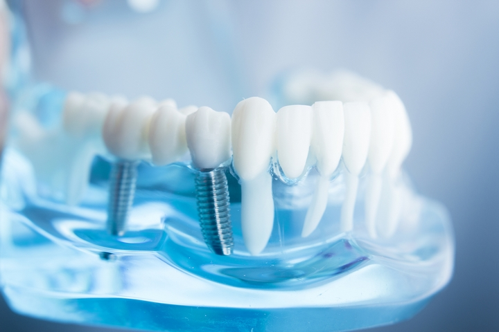 6 Interesting Facts about Dental Implants – Dyno Mom – Mommy